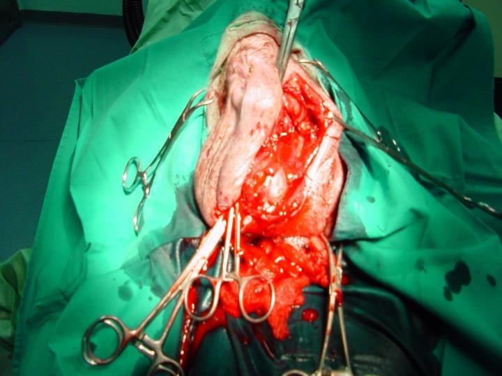 dolori post operatorio ernia inguinale bilaterale Images - Frompo